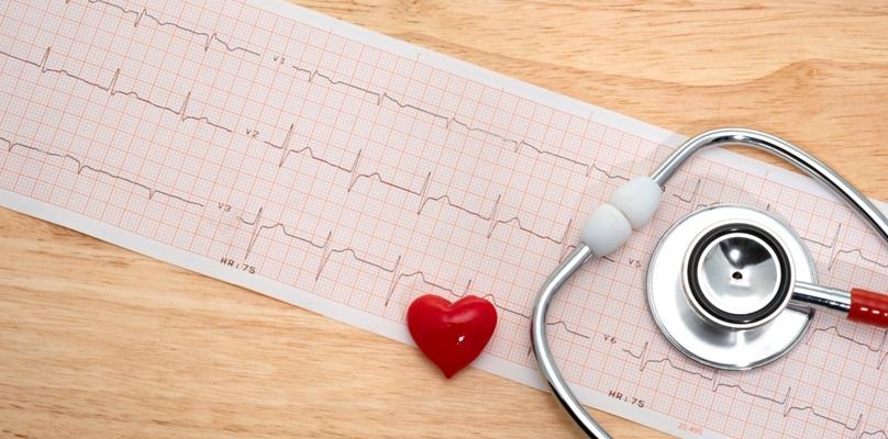 Elektrokardiografie