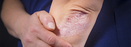 Psoriasis Arthrits